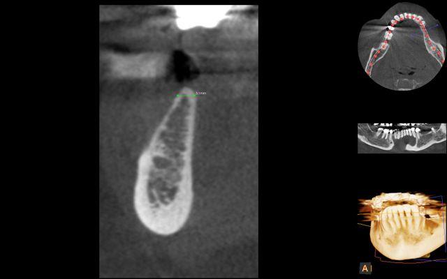 AR- CBCT thin bone 2