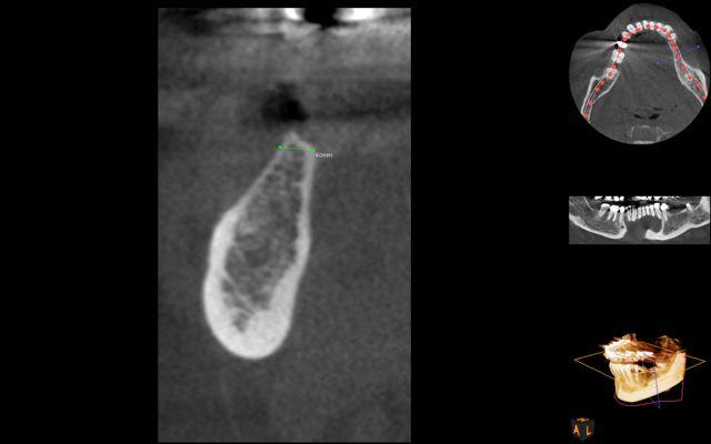 AR- CBCT thin bone