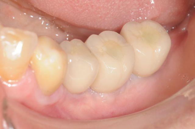 AR- final implant supported crowns clinical