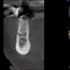 AR- CBCT after bone grafting
