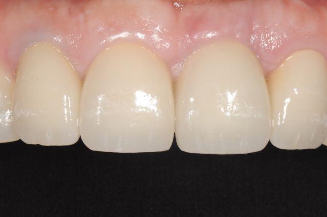 final-incisor-crown