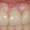 final-implant-crowns-upper-incisors
