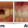 implant-before-and-after-2