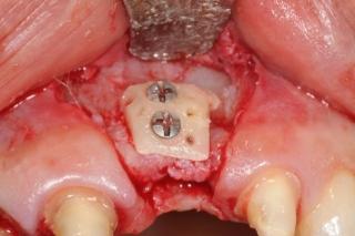 Bone graft for dental implant