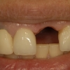 Missing mixillary incisor