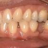 Missing lower right molar