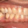 Missing lower left molar