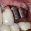 The custom abutment in occlusion