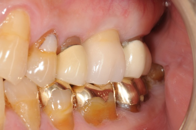 Implant crown in bite