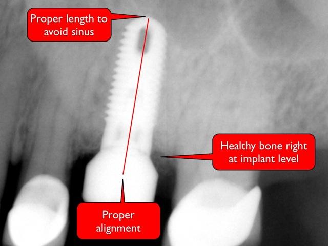 Proper dental implant placement