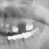 Missing tooth #14