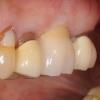 Implant crown- Dr. Kazemi oral surgeon