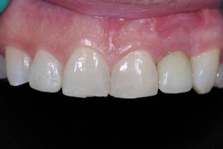 Final implant crown