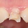 Broken upper incisor