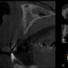 dental ct scan cbct
