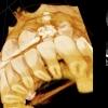 dental ct scan after bone graft