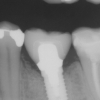 Implant lower molar