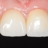 Implant crown in the front tooth