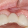 Bone loss after extraction front tooth