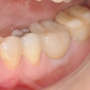 Implant lower molar with crown