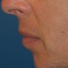 Chin implant- before