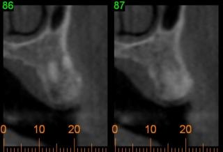 CT scan images for dental implants