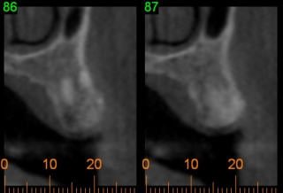 CT scan images for dental implants