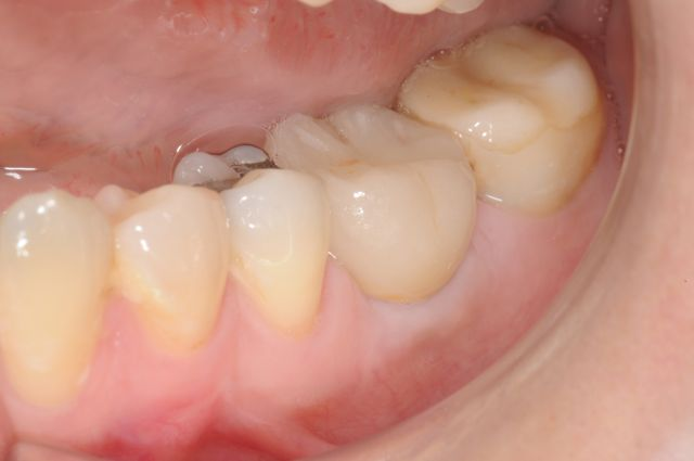 Patient B- Lower two molars