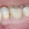 Patient A- Lower single molar