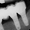 Left side implants- 11 years