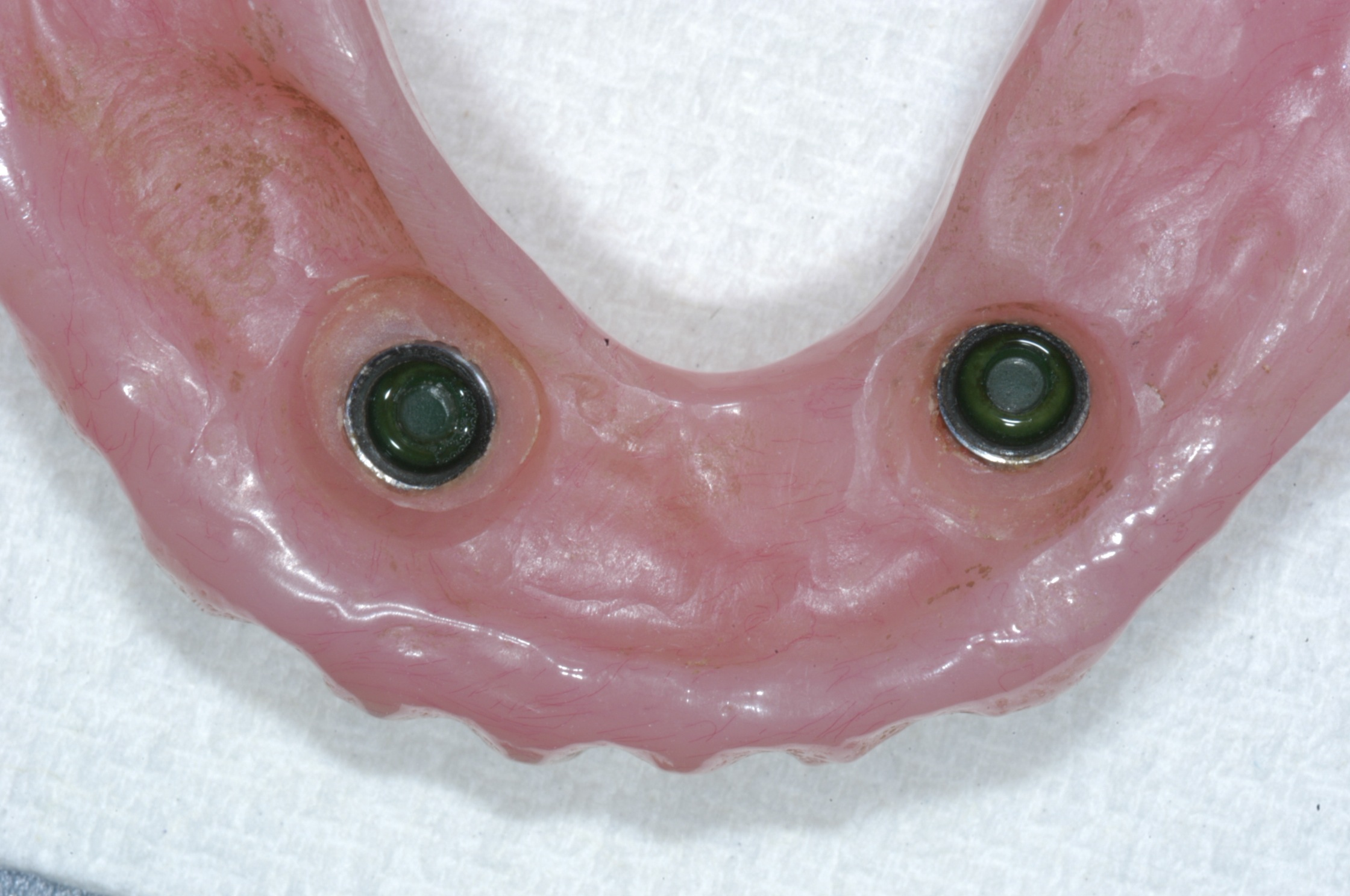Overdenture with attachments