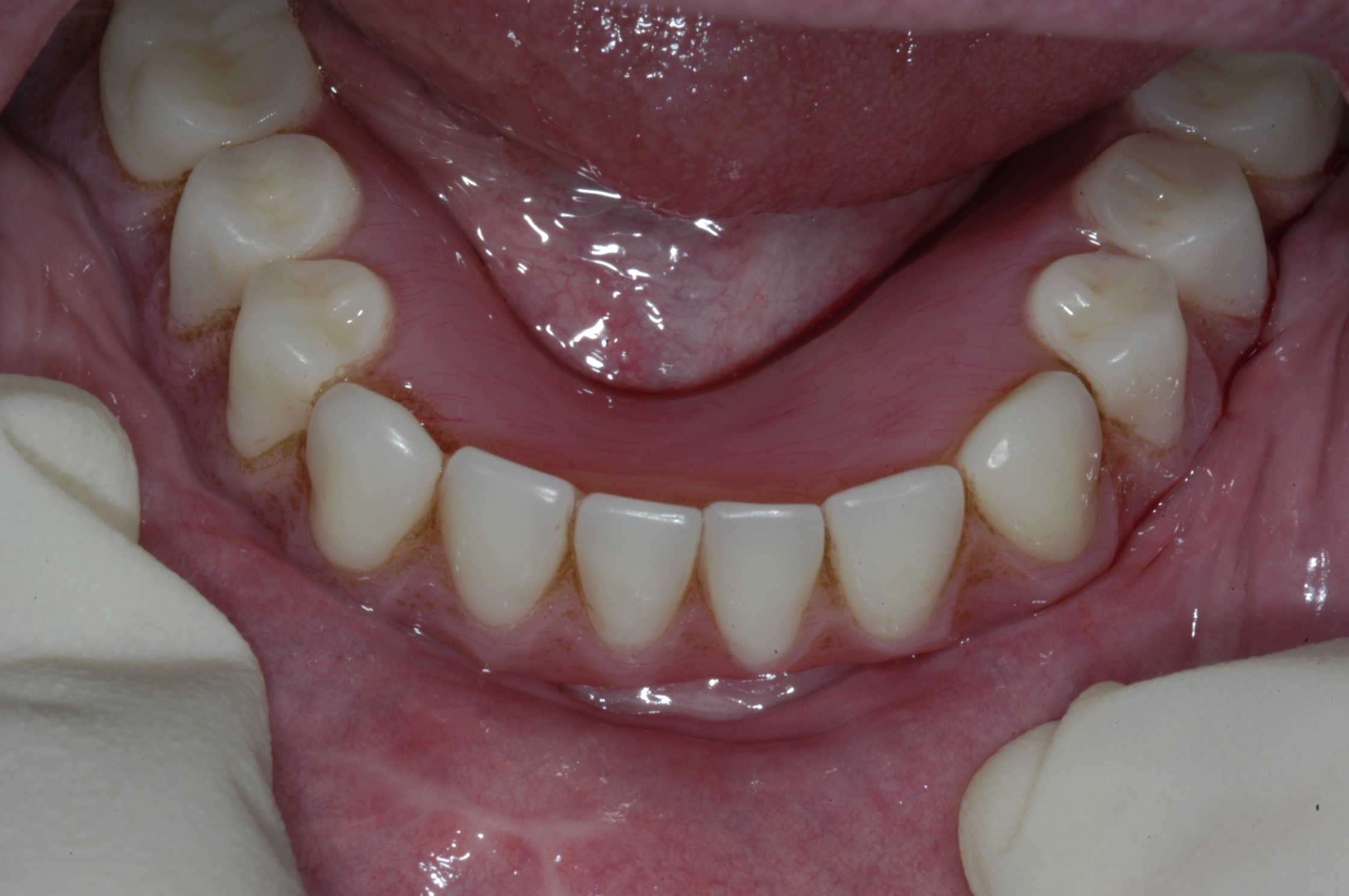 Dental Implants for Dentures,H. Ryan Kazemi D.M.D ...