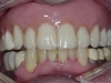 Overdenture is supported by four implants