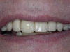 Natural smile and great denture stability