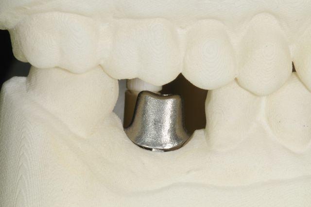 CAD :CAM implant custom abutment