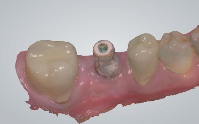 Intra-oral scan of dental implant using scan body