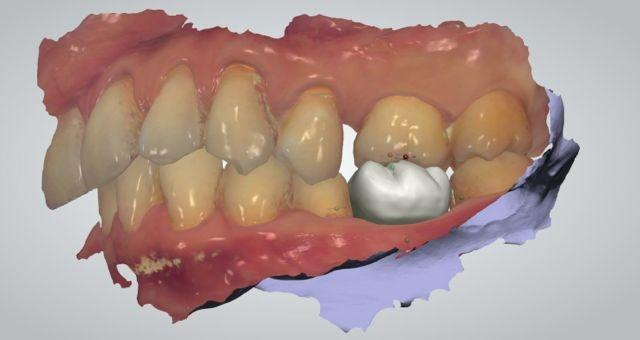Intraoral dental scan with digital waxup