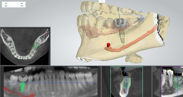 computer assisted dental implant planning