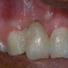 upper incisor cosmetic