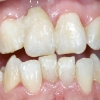 patient following tooth extraction