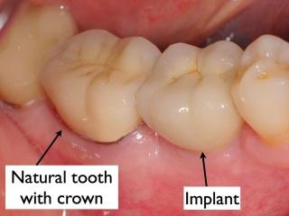 Final crown on dental implant- Dr. Kazemi