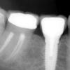 dental implant lower molar