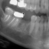 Missing tooth #30 lower molar