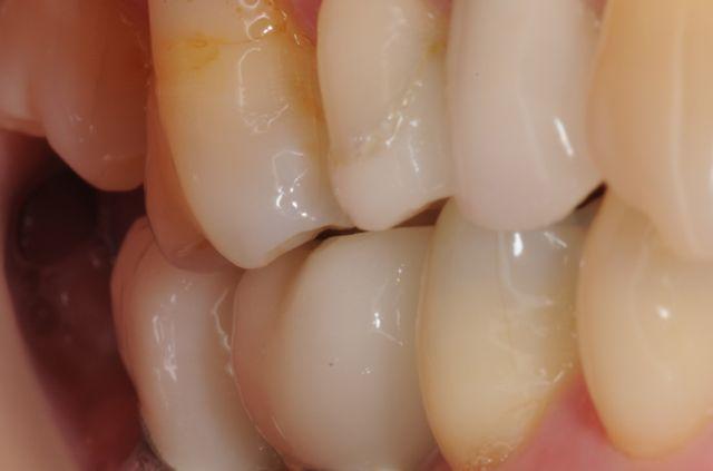 Final crowns on short dental implants