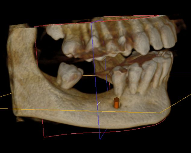 Hamid Ryan Kazemi- CBCT missing molars