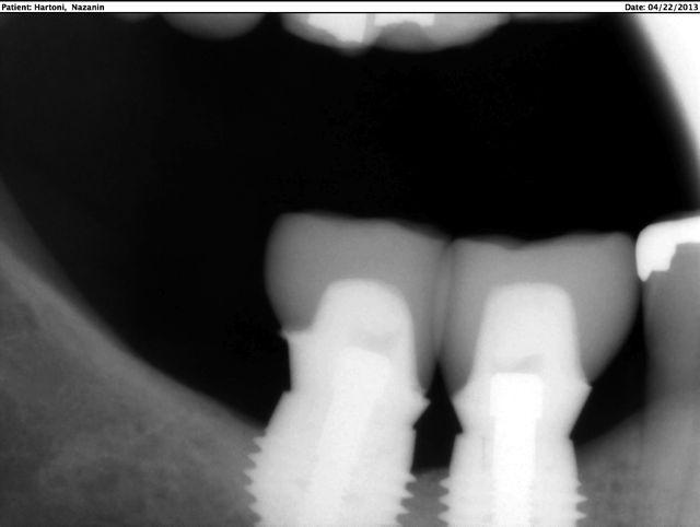 Final restoration on short implants