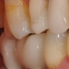 Final crowns on short dental implants