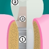 Dental implant, abutment, tooth crown