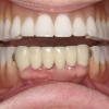 teeth in a day- Patient with remaining lower teeth
