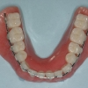 Transitional denture